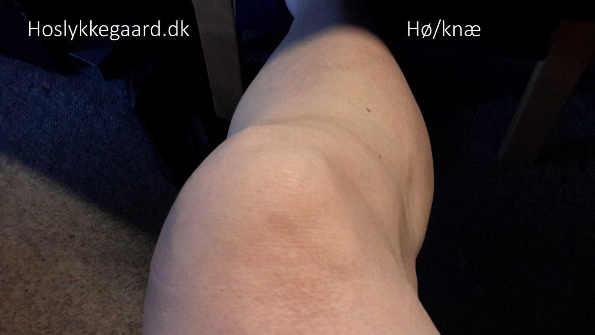 Det højre deforme knæ