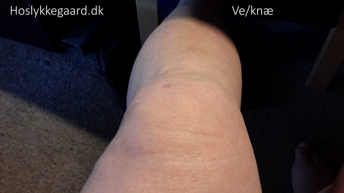 """venstre """"normal"""" knæ"""